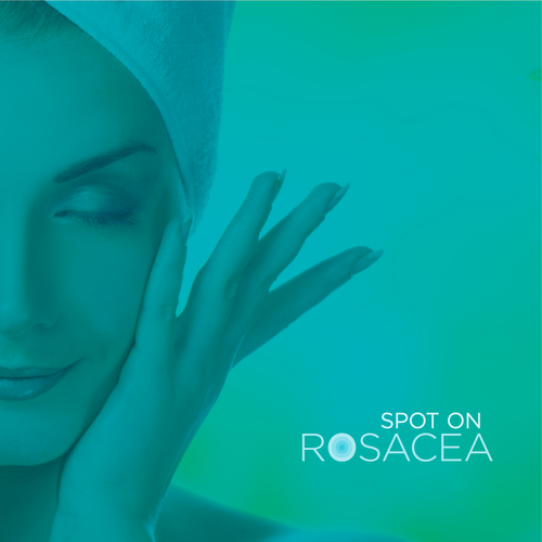 Rain design with the title 'Spot on Rosacea'