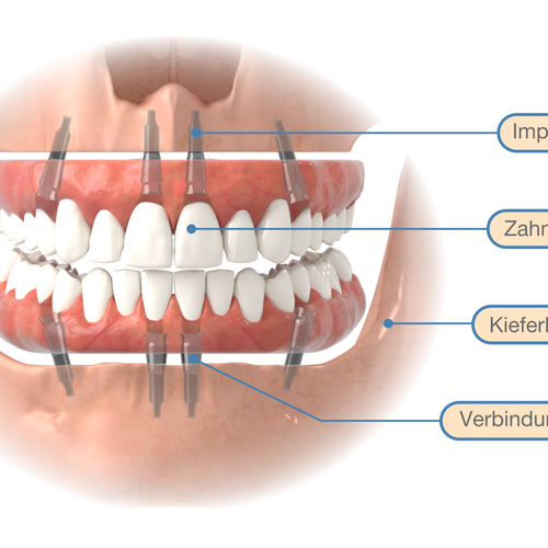 3D illustration with the title 'Graphics for implantology'