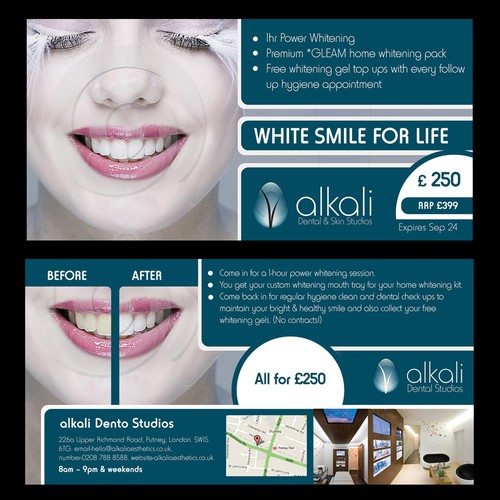 New Flyer Design Wanted For Teeth Whitening Promotion